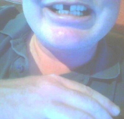 Provisorischer Zahnersatz Zahnprothese     auch für gebrochene Zähne Gebiss™️