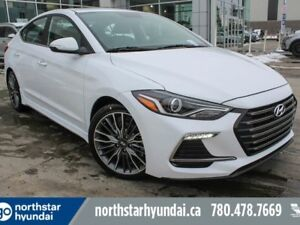 2018 Hyundai Elantra SPORT: AUTO DCT/1.6L TURBO/LEATHER/HEATED S