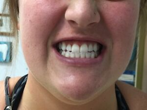 FREE Teeth Whitening for NEW Clients - FRESH Dental Hygiene Care Peterborough Peterborough Area image 6