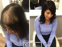 CALGARY HAIR EXTENSIONS FOR -Woman Hair loss&thinning Solution