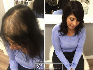 CALGARY HAIR EXTENSIONS FOR -Hair Loss&thinning Solution Calgary Alberta image 2