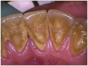 LOW COST DENTAL CLEANINGS AVAILABLE HERE
