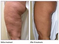 A Nonsurgical Way to Lift, Tighten, and Tone Skin