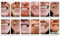 Teeth Whitening- If you Have Not had this done *BOOK WITH US