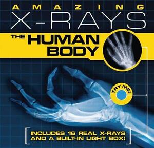 Amazing X-rays: Human Body (Hardcover)