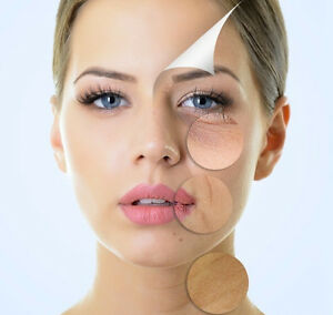 Medical Grade Peel Cambridge Kitchener Area image 1