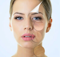 Dermal Fillers and Injectables