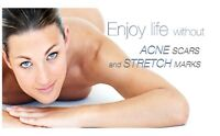 Acne and Acne Scar Treatments that work