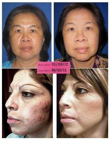 Retin A Facial Skin Care Ebay