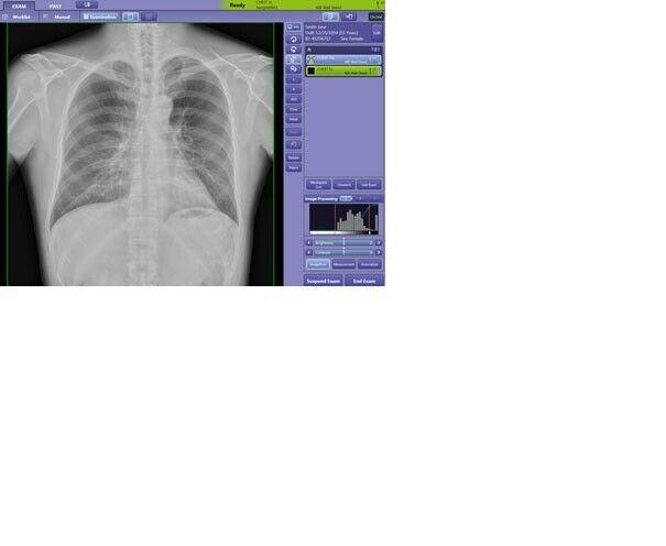 USED URGENT CARE DIGITAL MOBILE XRAY HOSPITAL GRADE PORTABLE X-RAY MACHINE