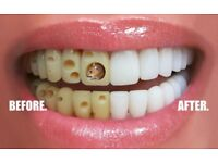 Smile Stylers Solves Dental Problems
