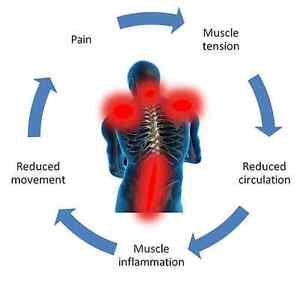 Pulsed Magnetic Field Therapy Cambridge Kitchener Area image 1