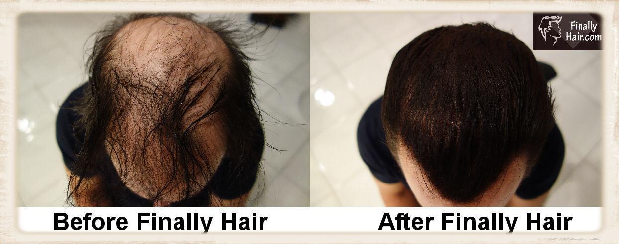 Keratin Hair Building Thicken Fiber