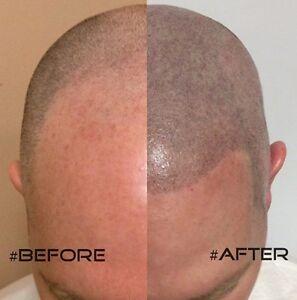 Hair Tattoo - non-surgical male/female hair loss solution Glenside Burnside Area Preview