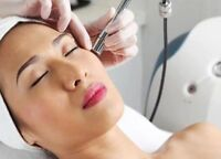 Microdermabrasion treatments!