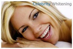 Lucrative Professional Teeth Whitening for Beauty Salon or Mobile Adelaide CBD Adelaide City Preview