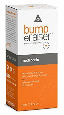 BEST Ingrown Hair & Razor Bump Treatment w/ Tea Tree Oil for Faster Healing