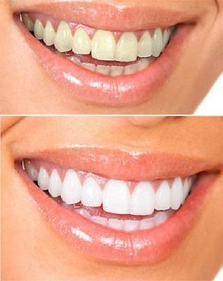 Tooth enamel may yellow over time