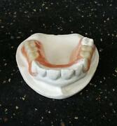 Dental Partial