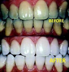 Laser teeth whitening 39 Pounds 1 Hr Session, Immediate Results!)