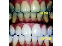 Laser teeth whitening 35 Pounds 1 Hr Session, Guaranteed Results!)