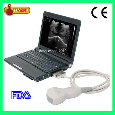 New Brand Portable Notebook Laptop Ultrasound machine Scanner system Digital b on Rummage