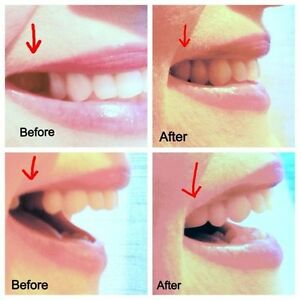 Tooth Repair Oral Care Ebay