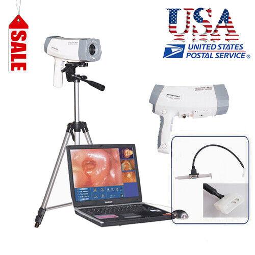 Digital Electronic Colposcope Video imaging Colposcopie Tripod &Software