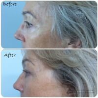 Non-Surgical Face Lift (Cosmetic Acupuncture)