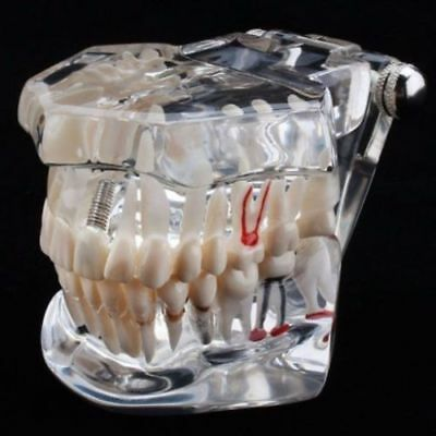 Implant Jaw Model Set For Dental Practice Or Demo Purpose