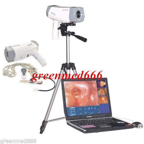 Digital Video Electronic Colposcope Camera 480000 pixels Tripod + Gift