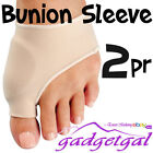 Foot Bunions