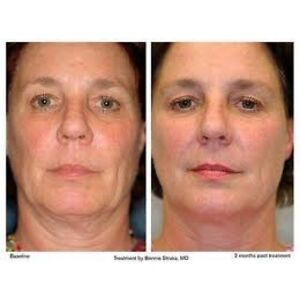 Non-Surgical Face Lift (Cosmetic Acupuncture) London Ontario image 1