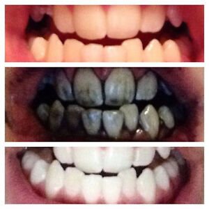 Activated Charcoal Organic Teeth Whitener & Detoxifier