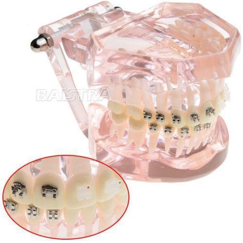 Teeth braces costumes reenactment theater ebay solutioingenieria Choice Image