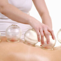 Cupping Therapy - Available For You!