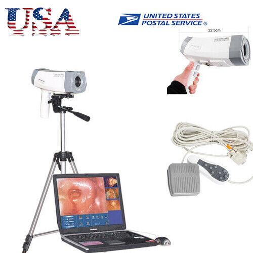 Digital Electronical Colposcope Color Video 480,000 Camera+Tripod Medical