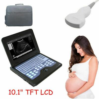 B Scan Ultrasound Doppler Portable Diagnostic Machine Can Chose Various Probe Us