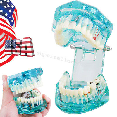 Usa Dental Implant Disease Teeth Model Transparent Adult Pathological F Teaching