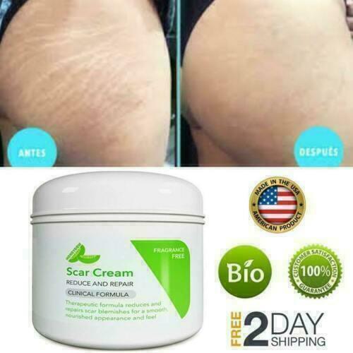Crema Para Estrias Cicatrices Celulitis Cocoa Reduce Marcas De Piel Queloide 4oz