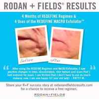 Rodan & Fields skin care products