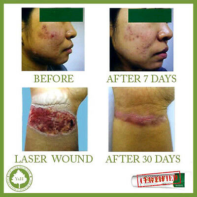 *** Best SCAR REMOVAL PRODUCT Cream Treatment For SCARS, INJURY, SURGERY, BURN