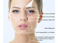 Microneedling ( anti-aging, acne scars, rejuvenation , etc) £50