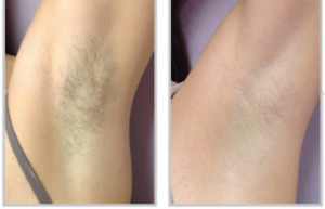 Affordable laser hair removal service