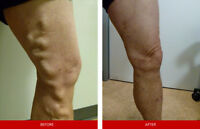 Love your legs!! Varicose Vein and Spider Vein Treatments!