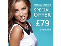 Mobile Laser Teeth Whitening - Wolverhampton, Birmingham, Dudley, Walsall and West Midlands area