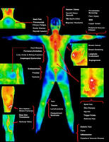 Thermography ~ Medical Imaging Clinic June 4-6