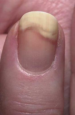 fingernails separating from nail bed #11