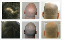 SMP, Scalp Micro Pigmentation and Scar Camouflage