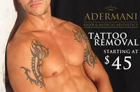 Tattoo Removal 50% OFF - Laser treatments starting at $45!